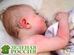 Кожные заболевания у детей моллюски фото