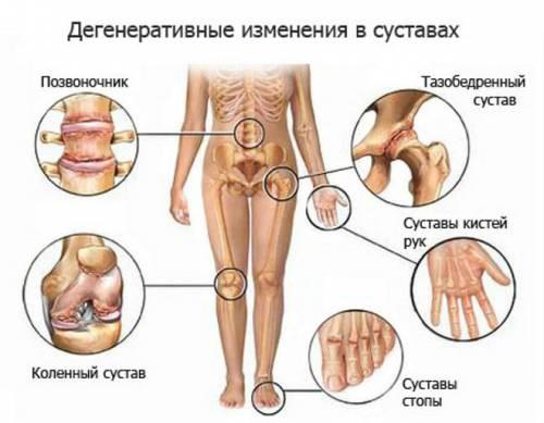 методика бубновского для суставов