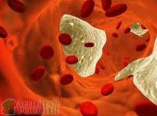 Исключение углеводов приводит к развитию атеросклероза