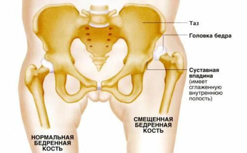 Врожденный вывих тазобедренного сустава лечение в старшем возрасте народные средства от остеоартроза голеностопного сустава
