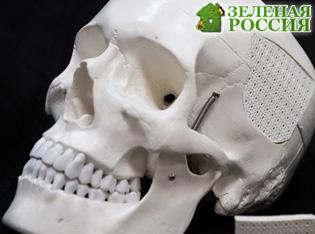 Российские ученые создали импланты костей на основе полиэтилена