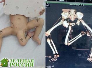 Мальчику удалили третью ногу