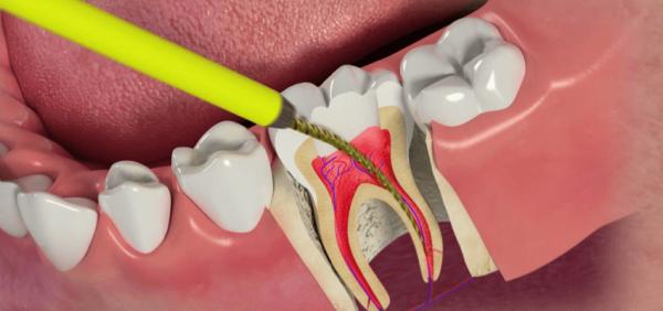 Лечение пульпит зуба